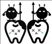 歯と歯の間のむし歯